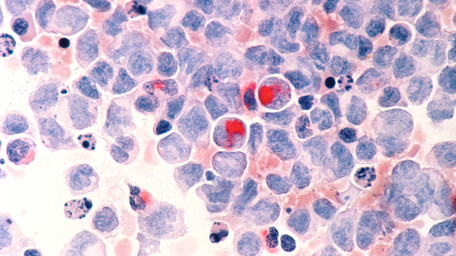 Roots of Leukaemia Reveal Possibility of Predicting People at Risk