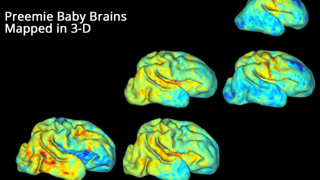 Scientists 3-D Map Premature Babies' Brain Growth