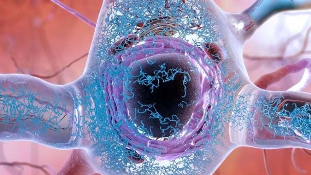Scientists ID Genesis of Toxic Proteins Behind Alzheimer's Disease