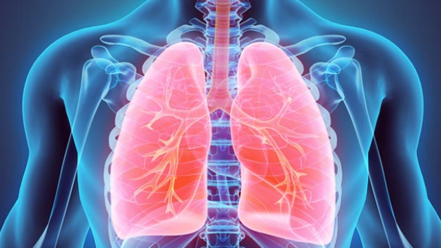 Scientists ID Key Player in Lung Cancer: A Potential Drug Target