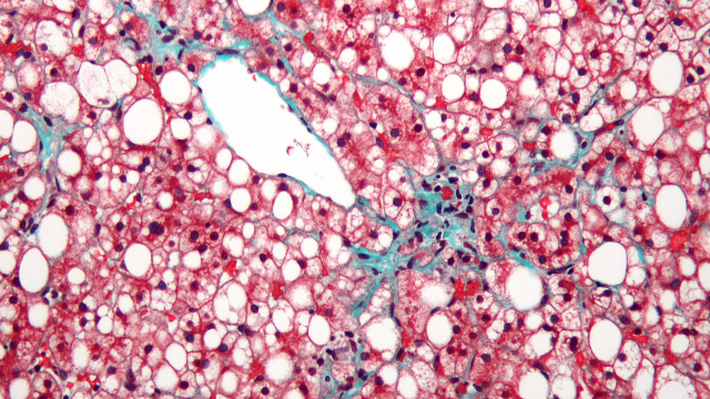 Scientists Track Down Genes Associated with Liver Disease