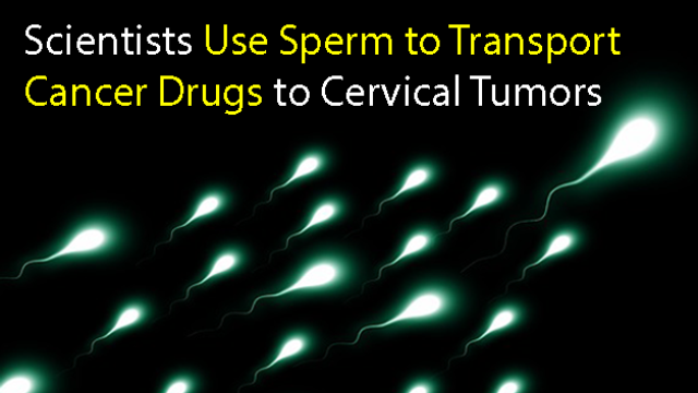 Scientists Use Sperm to Transport Drugs to Treat Cervical Cancer Cells