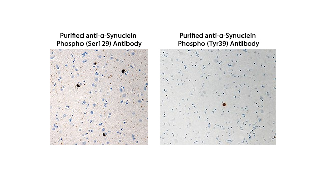 Search Out α-Synuclein Aggregation