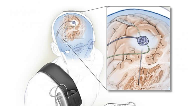 Self-tuning Brain Implant Could Help Treat Patients with Parkinson's Disease