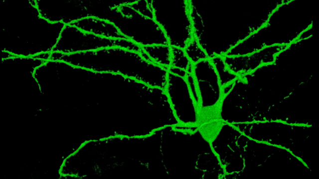 Single-Cell Sequencing Helps Understand Spiny Neurons