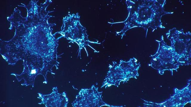 Skin Cancer Cells Sidestep the Immune System