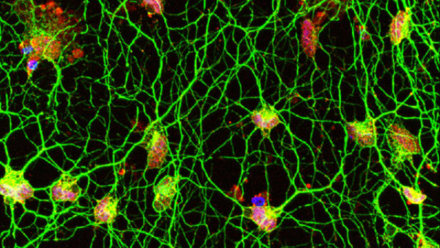 Skin Cells Directly Converted into Motor Neurons