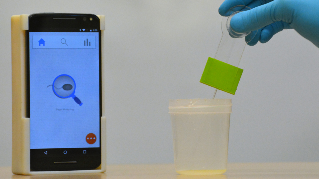 Smartphone-based Assay Enables Point-of-care Diagnosis of Sperm Abnormalities