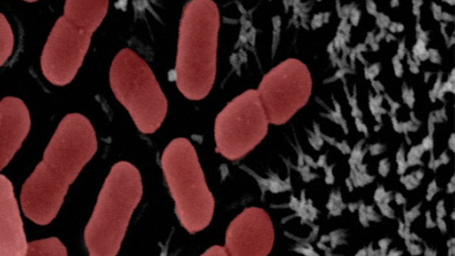 Keeping gut bacteria in balance could help delay age-related diseases, study finds