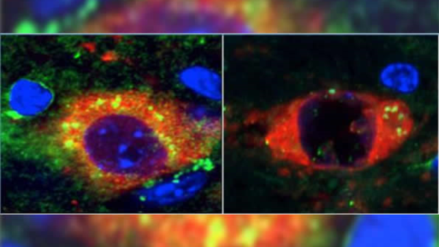 Rapamycin prevents Parkinson's in mouse model of incurable neurodegenerative disease