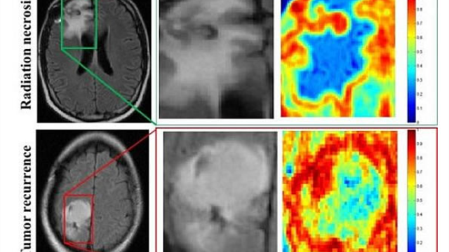 Computer program beats physicians at brain cancer diagnoses