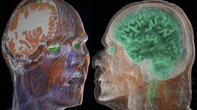 Post-mortem assessment guidelines for vascular cognitive impairment