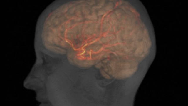 Brain damage during stroke may point to source of addiction