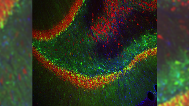 A new factor in depression? Brain protein discovery could lead to better treatments