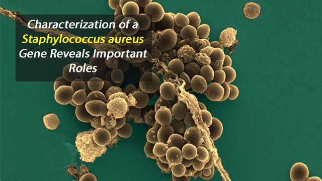Staphylococcus aureus: A New Mechanism Involved in Virulence and Antibiotic Resistance