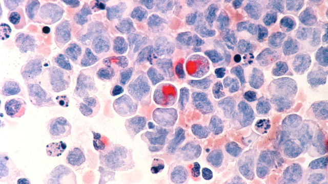 Stealing from the Body: How Blood Cancer Recharges its Batteries
