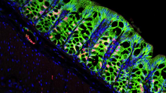 Stem-Cell Niche for 10 Billion Colon Cells a Day