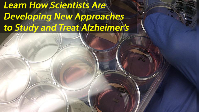 Stem-cell Study Points to New Approach to Alzheimer's Disease