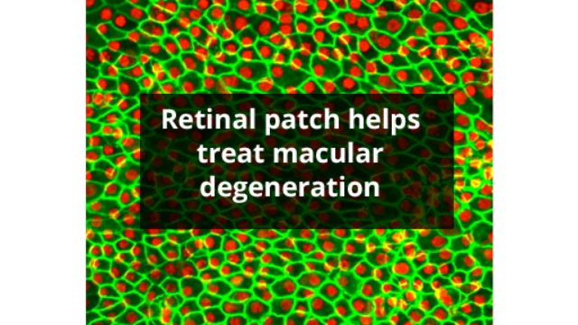 Stem Cells Treat Macular Degeneration