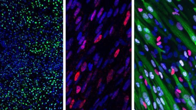 Stem Cells Turned into Somites