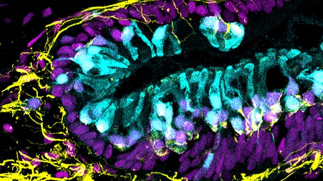 Stem Cells Used to Create Inner Ear Organoids