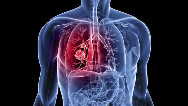 Stopping Early Stage Lung Cancer in its Tracks