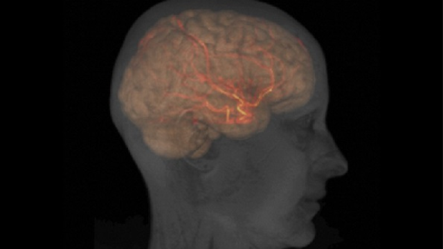 Landmark study to guide protocol for stroke patients