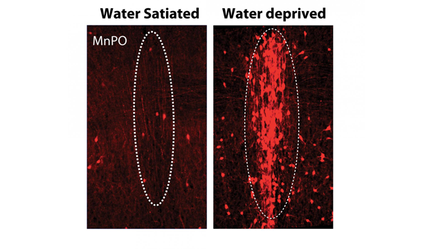 Study Identifies Neurons That Encode Thirst