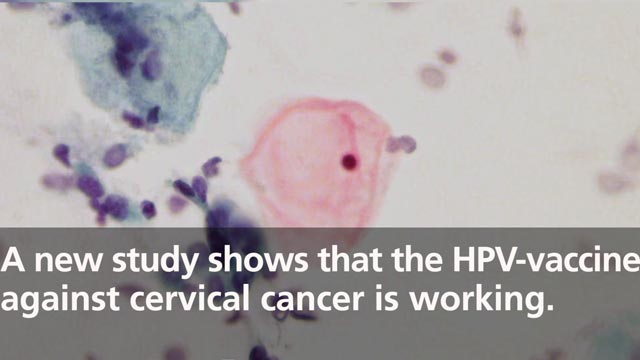 Study Shows HPV-vaccine Against Cervical Cancer is Working