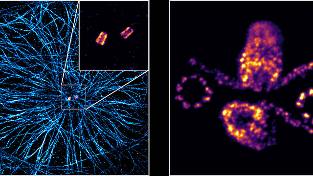 Super-resolution Microscopy at its Best