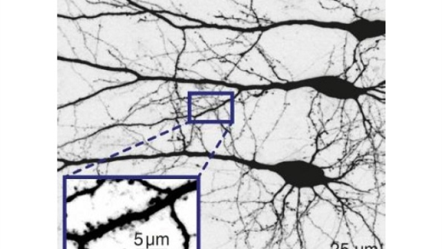 Scientists present a protein that facilitates the control of nerve cells by light