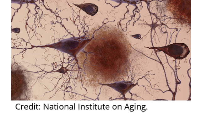 Systems Biology Advances Alzheimer's Research