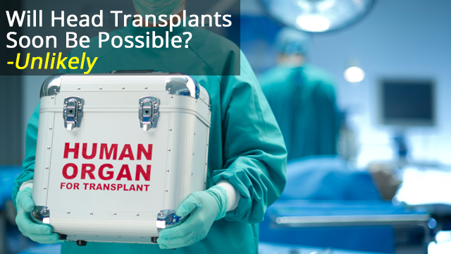 Take It From Me: Neuroscience is advancing, but we're a long way off head transplants