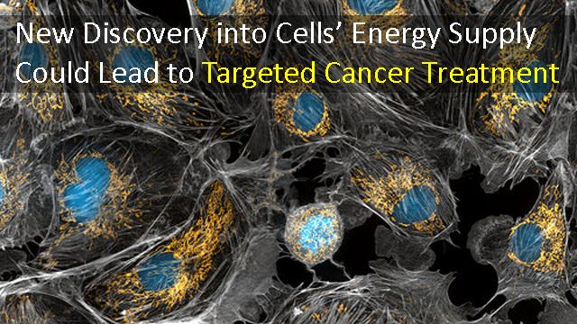 Targeted Cancer Treatment Could be Possible Thanks to Insights into Cells' Energy Supply