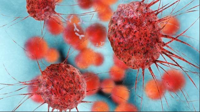 Targeting MC1R in Metastatic Melanoma