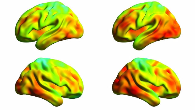 Tau Protein Spread in Brains of Alzheimer's Disease Measured