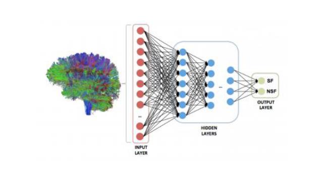 Teaching AI to Predict Epilepsy