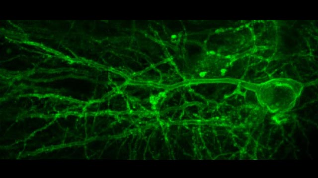 Technique Lets Us See Brain Cells Talk