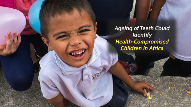 Telling Teeth: More Accurate Ageing of Teeth Could Hold the Key to Identifying Health-Compromised Children in Africa