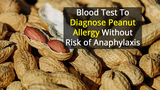 Test to Safely and Accurately Diagnose Peanut Allergies