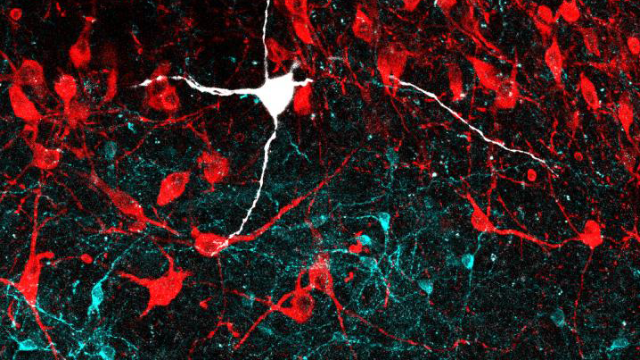 The Brain Circuits That Help You Keep Your Cool