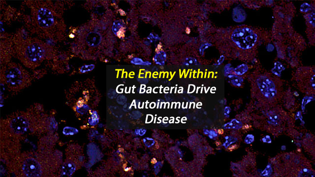 The Enemy Within: Gut Bacteria Drive Autoimmune Disease