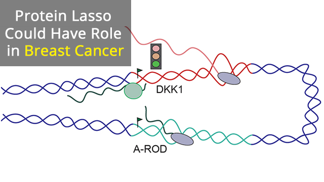 The Protein Lasso Implicated in Breast Cancer