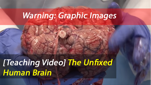 The Unfixed Brain from a Recent Autopsy