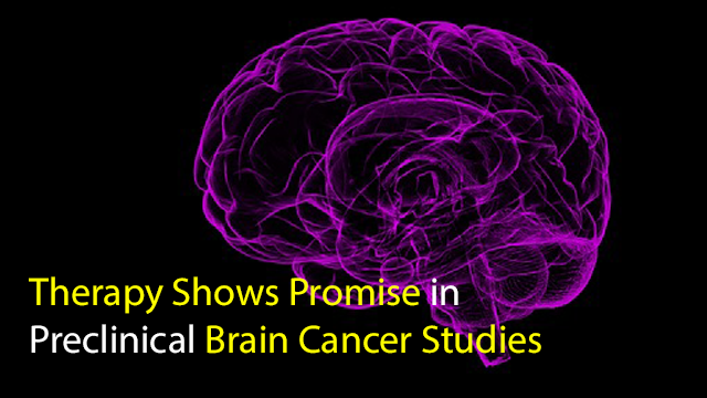 Therapy Shows Promise in Preclinical Brain Cancer Studies