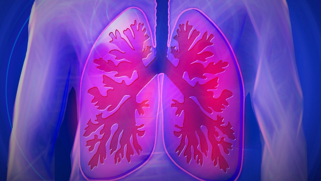 Towards Noninvasive Detection of Lung Cancer