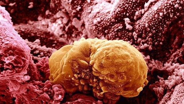 Transcription Roadblock Limits Entry of Epiblast Cells to the Germline
