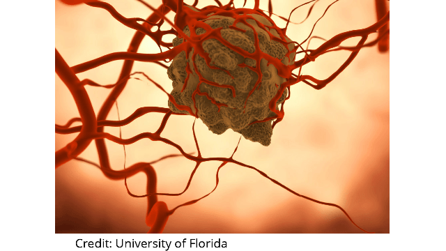 Tumor Cells Bolster Their Own Blood Supply