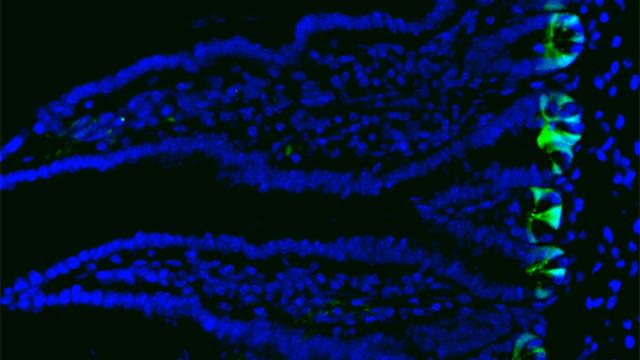 Understanding How the Intestine Regenerates