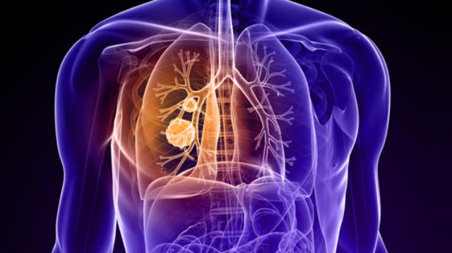 Using AI to ID Lung Cancer Types